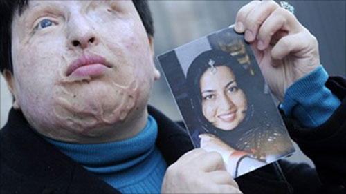 A victim of acid attack in Iran before and after she was attacked.