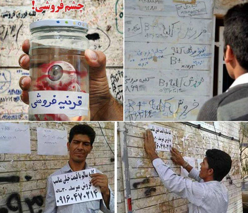 Poor Iranians Selling Their Body Parts